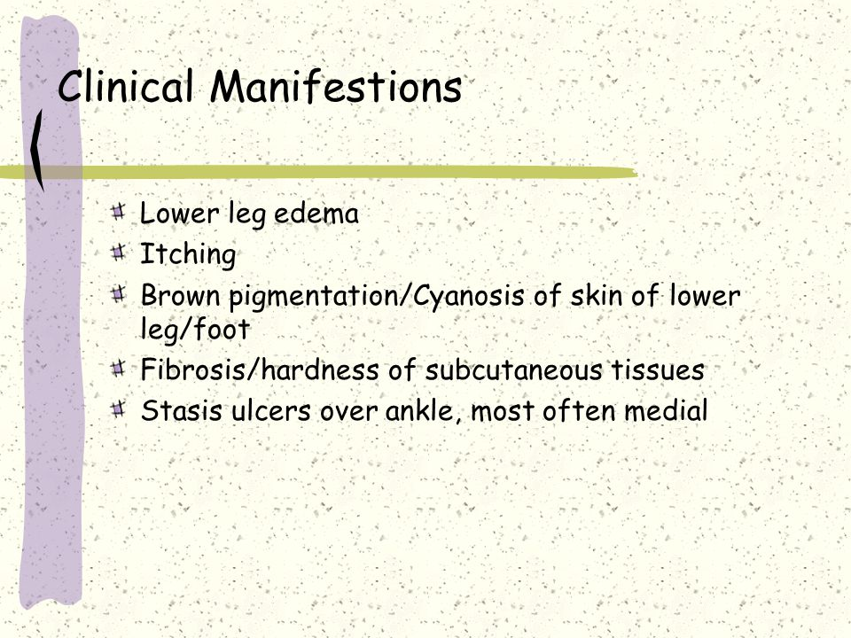 Clinical Manifestions Lower leg edema Itching Brown pigmentation/Cyanosis of skin of lower leg/foot Fibrosis/hardness of subcutaneous tissues Stasis u