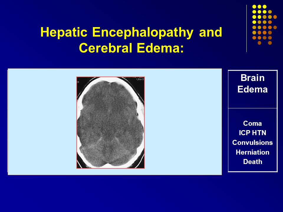 Hepatic Encephalopathy and Cerebral Edema: Stage I Stage II Stage III Stage IV Brain Edema Symptoms Insomnia Difficulties in concentration Drowsiness confusion Somnolence Coma ICP HTN Convulsions Herniation Death Signs Sluggish speech Flapping tremor
