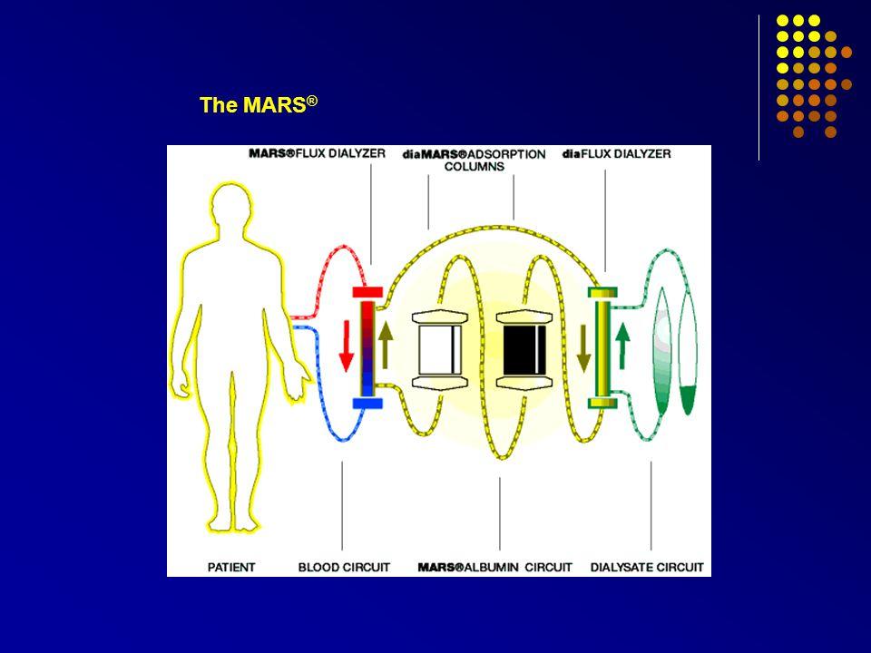 The MARS ®