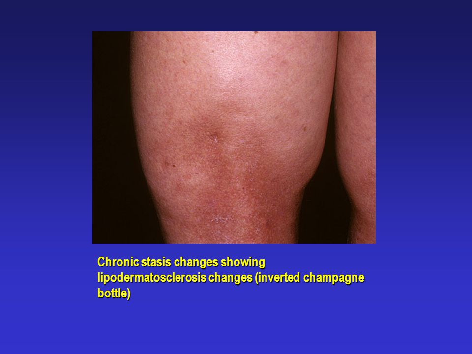Chronic stasis changes showing lipodermatosclerosis changes (inverted champagne bottle)
