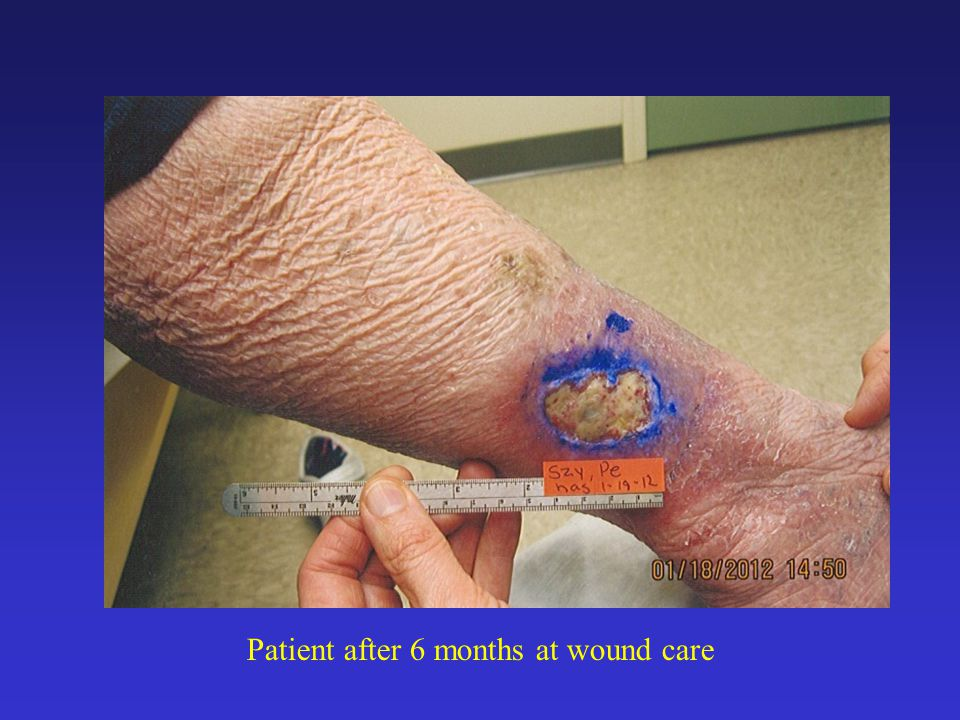 Patient after 6 months at wound care