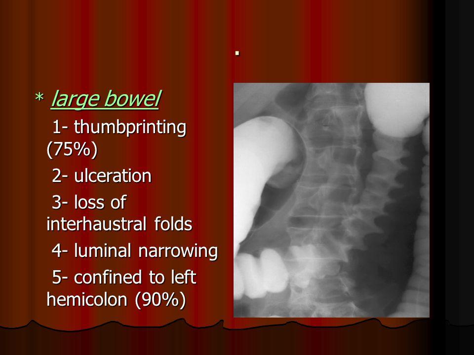 . * large bowel * large bowel 1- thumbprinting (75%) 1- thumbprinting (75%) 2- ulceration 2- ulceration 3- loss of interhaustral folds 3- loss of interhaustral folds 4- luminal narrowing 4- luminal narrowing 5- confined to left hemicolon (90%) 5- confined to left hemicolon (90%)