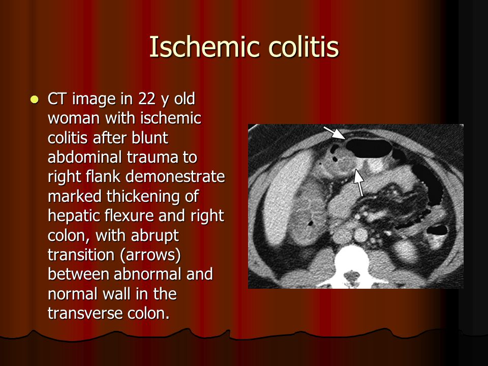 Ischemic colitis CT image in 22 y old woman with ischemic colitis after blunt abdominal trauma to right flank demonestrate marked thickening of hepatic flexure and right colon, with abrupt transition (arrows) between abnormal and normal wall in the transverse colon.
