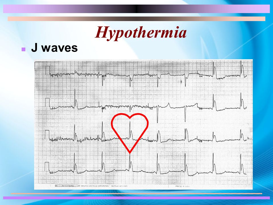 Hypothermia n J waves
