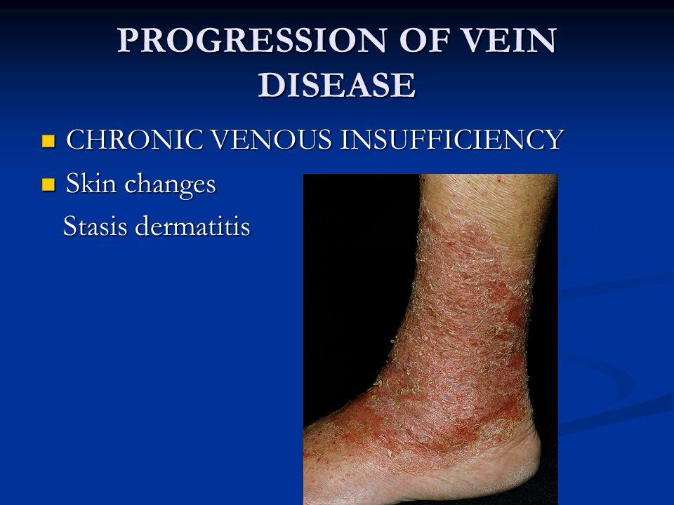 PROGRESSION OF VEIN DISEASE CHRONIC VENOUS INSUFFICIENCY CHRONIC VENOUS INSUFFICIENCY Skin changes Skin changes Corona phlebectatica Corona phlebectatica a.