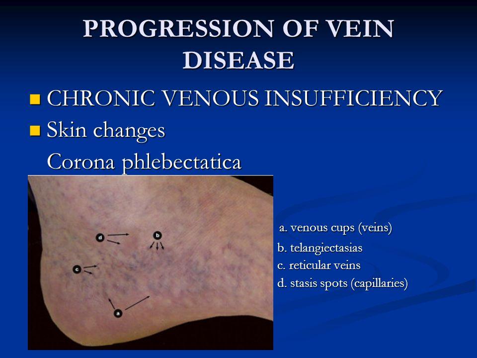 REFERENCES 1.2012 Vascular Disease Foundation.