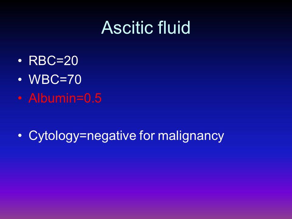 Ascitic fluid RBC=20 WBC=70 Albumin=0.5 Cytology=negative for malignancy