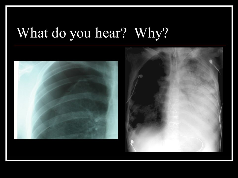 What do you hear Why