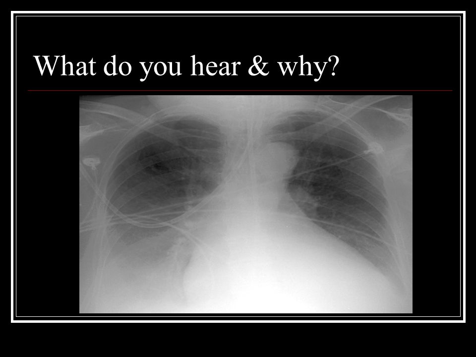 What do you hear & why