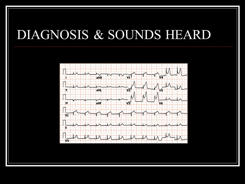 DIAGNOSIS & SOUNDS HEARD