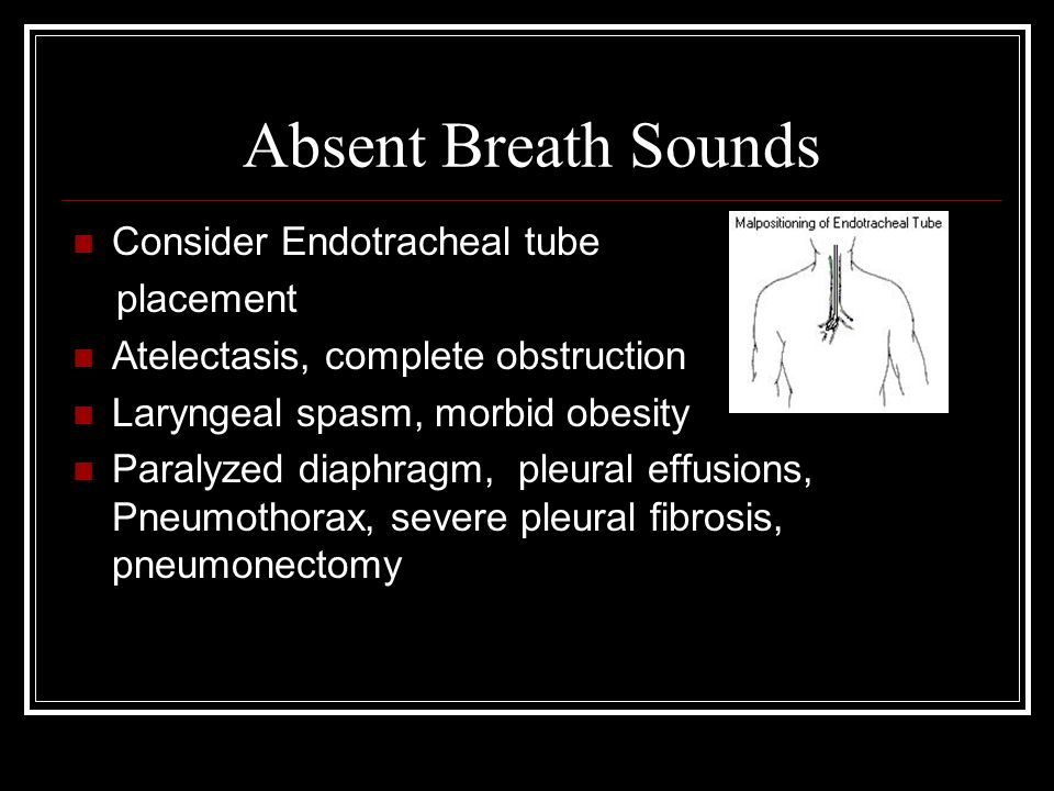 Absent Breath Sounds Consider Endotracheal tube placement Atelectasis, complete obstruction Laryngeal spasm, morbid obesity Paralyzed diaphragm, pleural effusions, Pneumothorax, severe pleural fibrosis, pneumonectomy