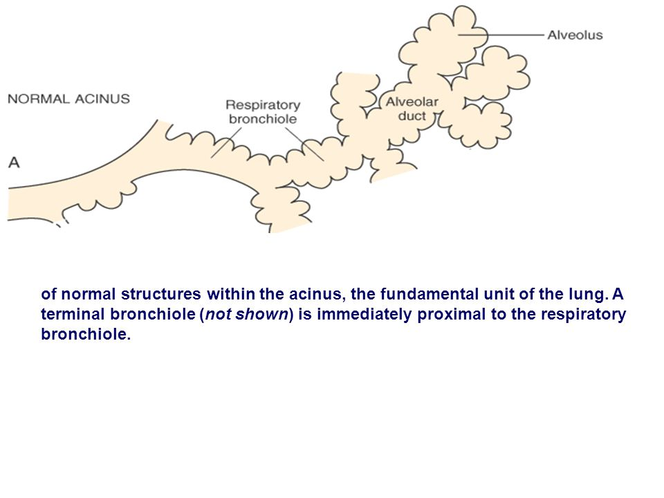of normal structures within the acinus, the fundamental unit of the lung. A terminal bronchiole (not shown) is immediately proximal to the respiratory
