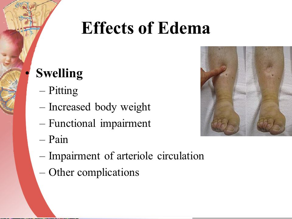 Effects of Edema Swelling –Pitting –Increased body weight –Functional impairment –Pain –Impairment of arteriole circulation –Other complications