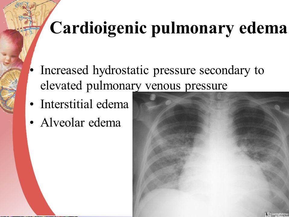 Cardioigenic pulmonary edema Increased hydrostatic pressure secondary to elevated pulmonary venous pressure Interstitial edema Alveolar edema