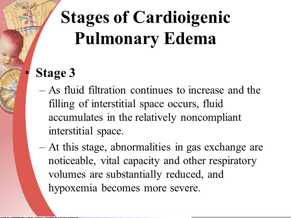 Stages of Cardioigenic Pulmonary Edema Stage 3 –As fluid filtration continues to increase and the filling of interstitial space occurs, fluid accumula