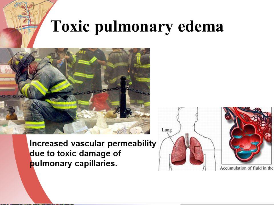 Toxic pulmonary edema Increased vascular permeability due to toxic damage of pulmonary capillaries.