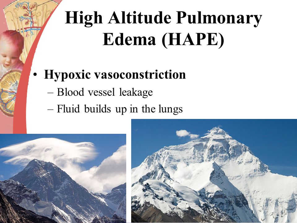 High Altitude Pulmonary Edema (HAPE) Hypoxic vasoconstriction –Blood vessel leakage –Fluid builds up in the lungs