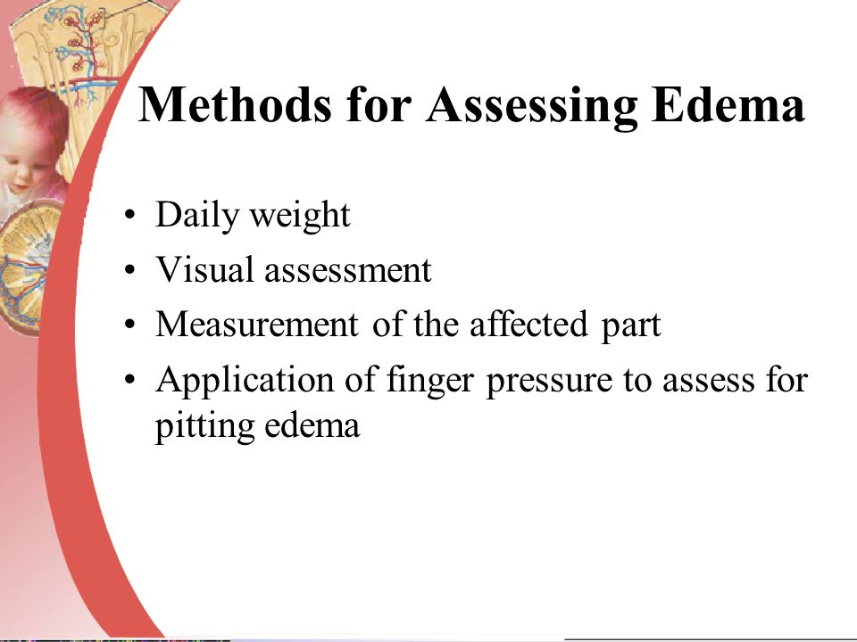 Methods for Assessing Edema Daily weight Visual assessment Measurement of the affected part Application of finger pressure to assess for pitting edema