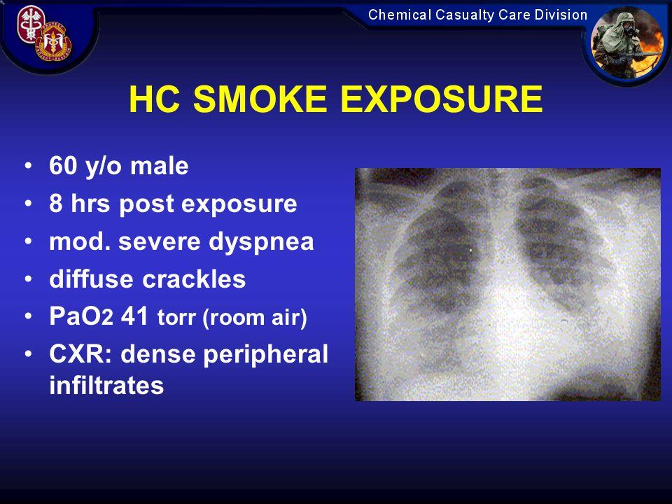 HC SMOKE EXPOSURE 60 y/o male 8 hrs post exposure mod.