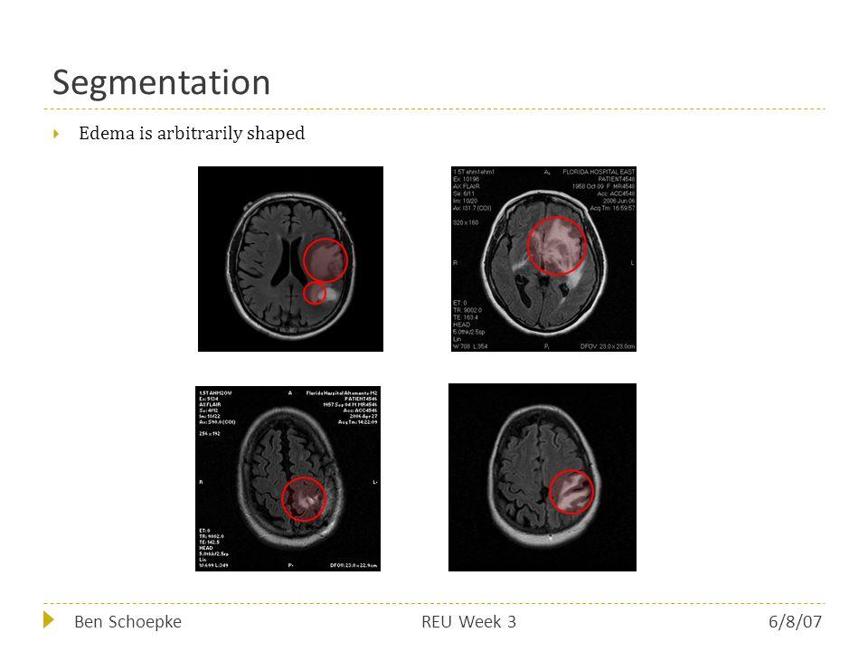 Segmentation  Edema is arbitrarily shaped Ben SchoepkeREU Week 36/8/07