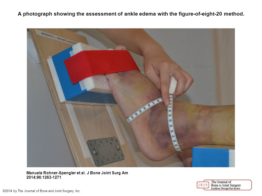 A photograph showing the assessment of ankle edema with the figure-of-eight-20 method. Manuela Rohner-Spengler et al. J Bone Joint Surg Am 2014;96:126