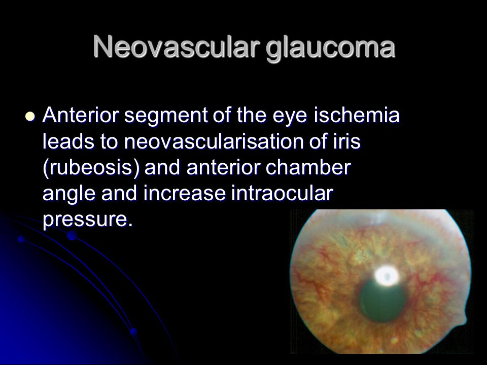 Neovascular glaucoma Anterior segment of the eye ischemia leads to neovascularisation of iris (rubeosis) and anterior chamber angle and increase intraocular pressure.