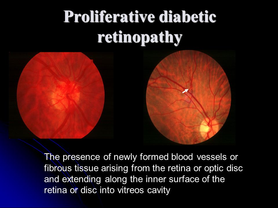 The presence of newly formed blood vessels or fibrous tissue arising from the retina or optic disc and extending along the inner surface of the retina or disc into vitreos cavity Proliferative diabetic retinopathy