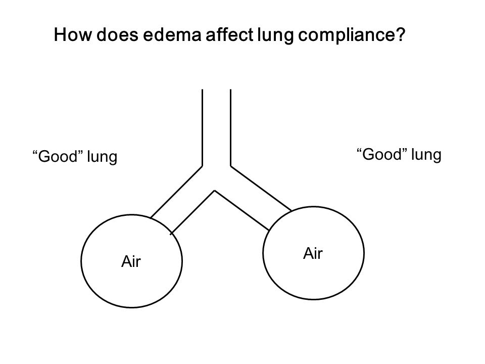 "How does edema affect lung compliance? Air ""Good"" lung"