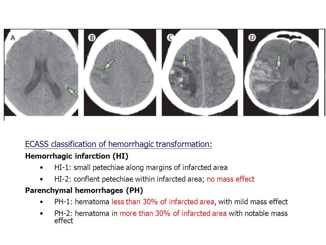 Haemorrhagic transformation www.thelancet.com/neurology Vol 10 April 2011 ECASS classification of hemorrhagic transformation: Hemorrhagic infarction (HI) HI-1: small petechiae along margins of infarcted area HI-2: conflent petechiae within infarcted area; no mass effect Parenchymal hemorrhages (PH) PH-1: hematoma less than 30% of infarcted area, with mild mass effect PH-2: hematoma in more than 30% of infarcted area with notable mass effect