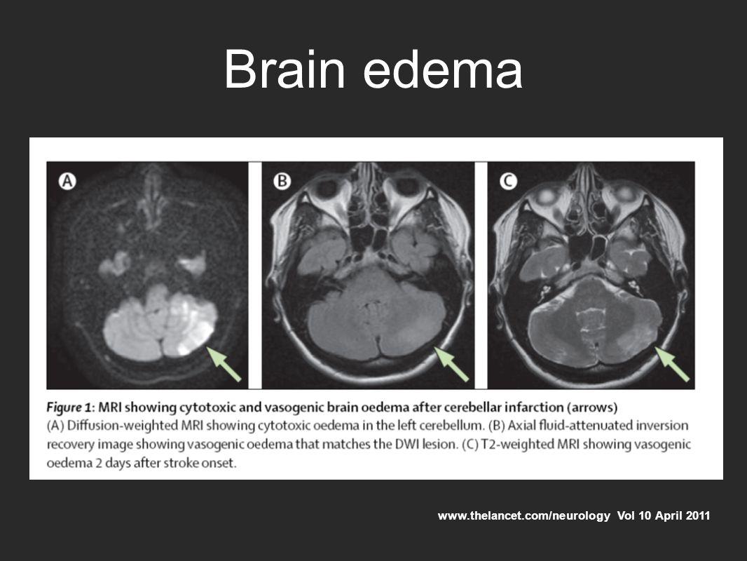 Brain edema www.thelancet.com/neurology Vol 10 April 2011