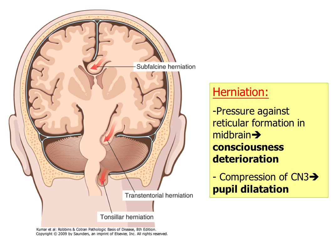 Herniation: -Pressure against reticular formation in midbrain  consciousness deterioration - Compression of CN3  pupil dilatation