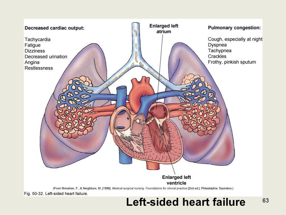 Left-sided heart failure 63