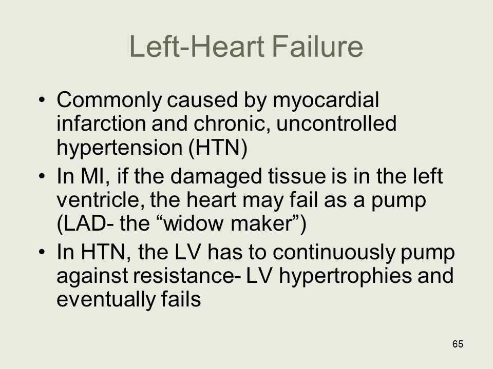 Left-Heart Failure Commonly caused by myocardial infarction and chronic, uncontrolled hypertension (HTN) In MI, if the damaged tissue is in the left v