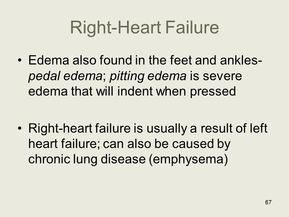 Right-Heart Failure Edema also found in the feet and ankles- pedal edema; pitting edema is severe edema that will indent when pressed Right-heart fail