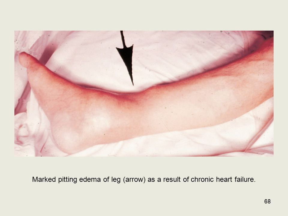Marked pitting edema of leg (arrow) as a result of chronic heart failure. 68