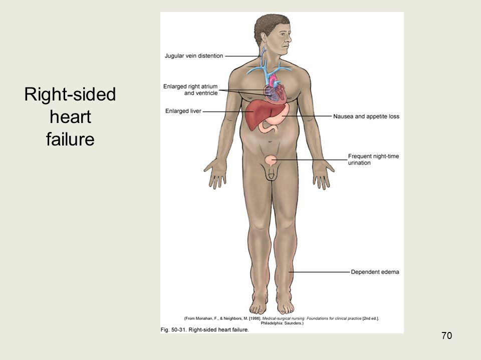 Right-sided heart failure 70