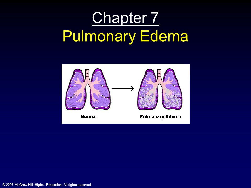 © 2007 McGraw-Hill Higher Education. All rights reserved. Chapter 7 Pulmonary Edema