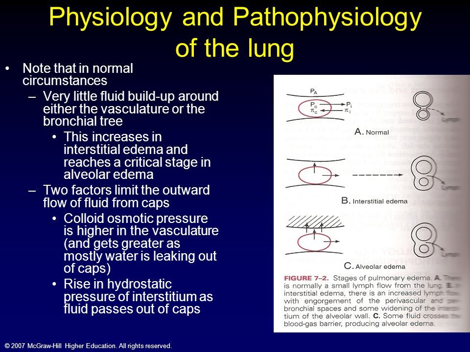 © 2007 McGraw-Hill Higher Education. All rights reserved. Physiology and Pathophysiology of the lung Note that in normal circumstances –Very little fl