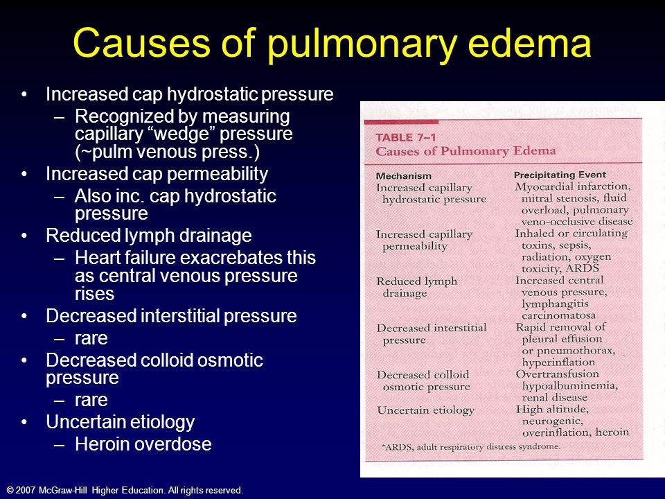 © 2007 McGraw-Hill Higher Education. All rights reserved. Causes of pulmonary edema Increased cap hydrostatic pressure –Recognized by measuring capill