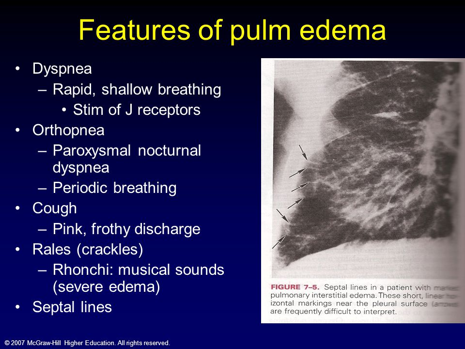 © 2007 McGraw-Hill Higher Education. All rights reserved. Features of pulm edema Dyspnea –Rapid, shallow breathing Stim of J receptors Orthopnea –Paro