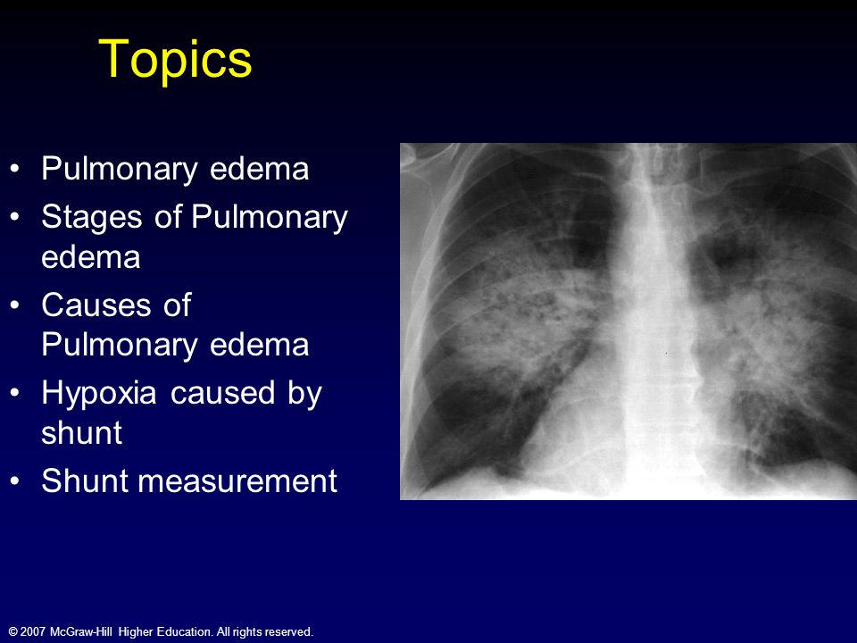 © 2007 McGraw-Hill Higher Education. All rights reserved. Topics Pulmonary edema Stages of Pulmonary edema Causes of Pulmonary edema Hypoxia caused by