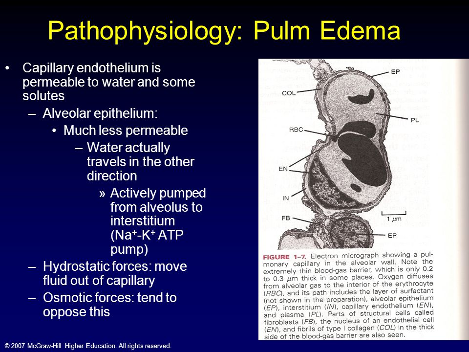 © 2007 McGraw-Hill Higher Education. All rights reserved. Capillary endothelium is permeable to water and some solutes –Alveolar epithelium: Much less