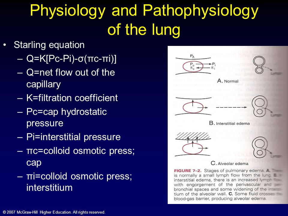 © 2007 McGraw-Hill Higher Education. All rights reserved. Physiology and Pathophysiology of the lung Starling equation –Q=K[Pc-Pi)-σ(πc-πi)] –Q=net fl