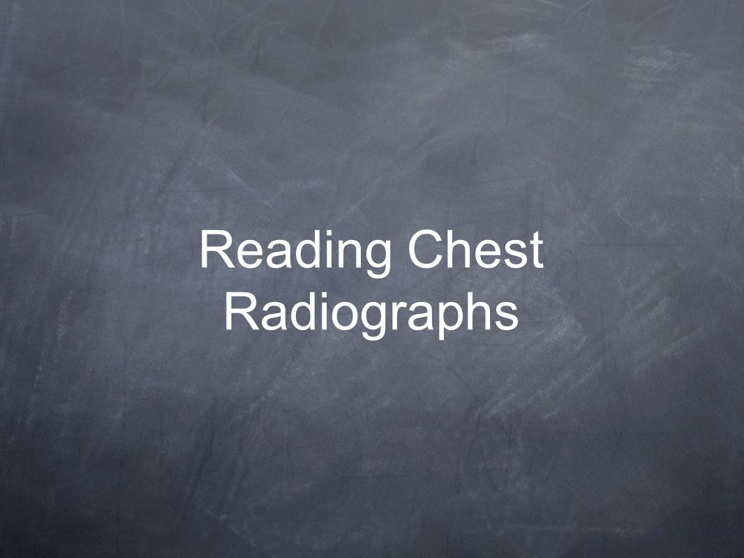 Reading Chest Radiographs