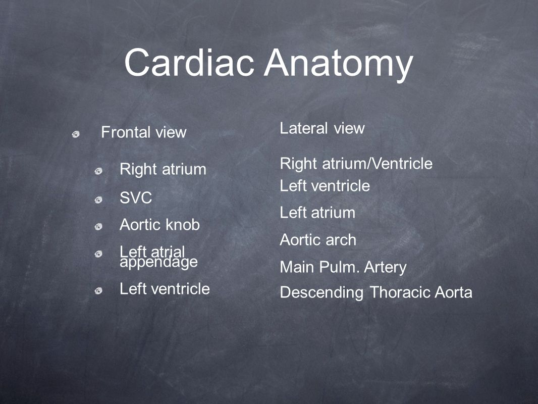 Cardiac Anatomy Frontal view Right atrium SVC Aortic knob Left atrial appendage Left ventricle Lateral view Right atrium/Ventricle Left ventricle Left