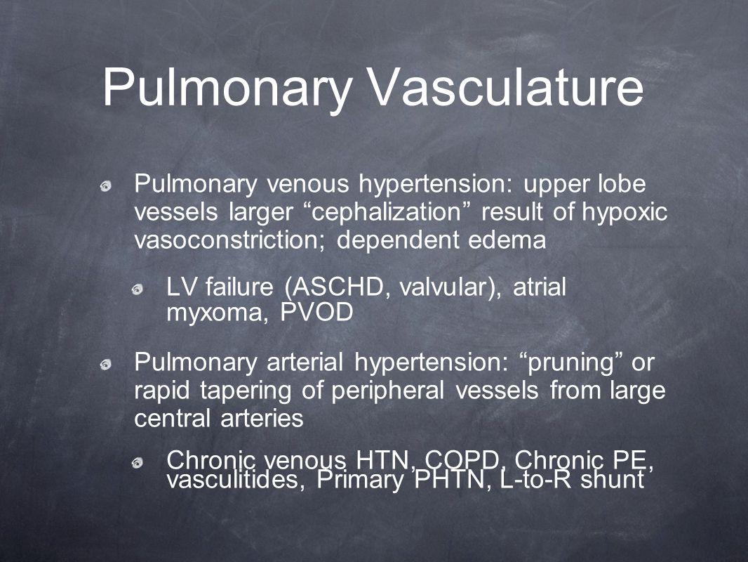 "Pulmonary Vasculature Pulmonary venous hypertension: upper lobe vessels larger ""cephalization"" result of hypoxic vasoconstriction; dependent edema LV"