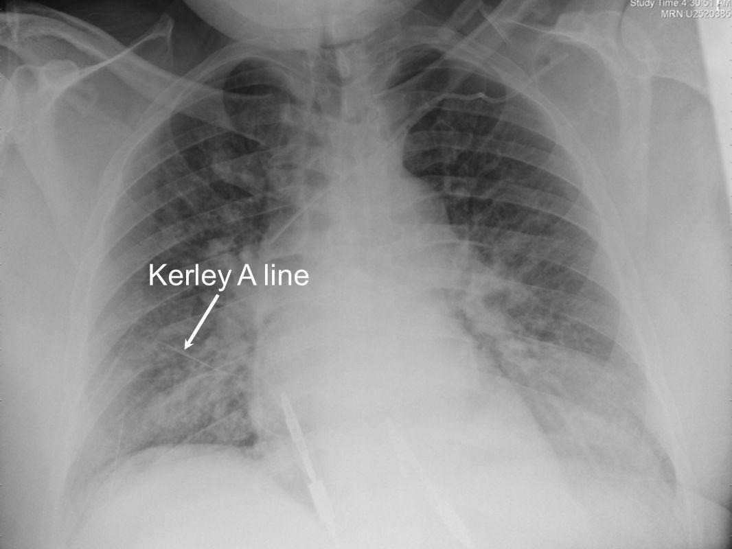 Kerley A line
