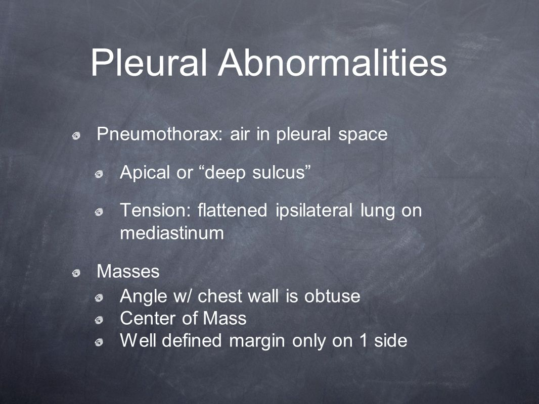 """Pleural Abnormalities Pneumothorax: air in pleural space Apical or """"deep sulcus"""" Tension: flattened ipsilateral lung on mediastinum Masses Angle w/ ch"""