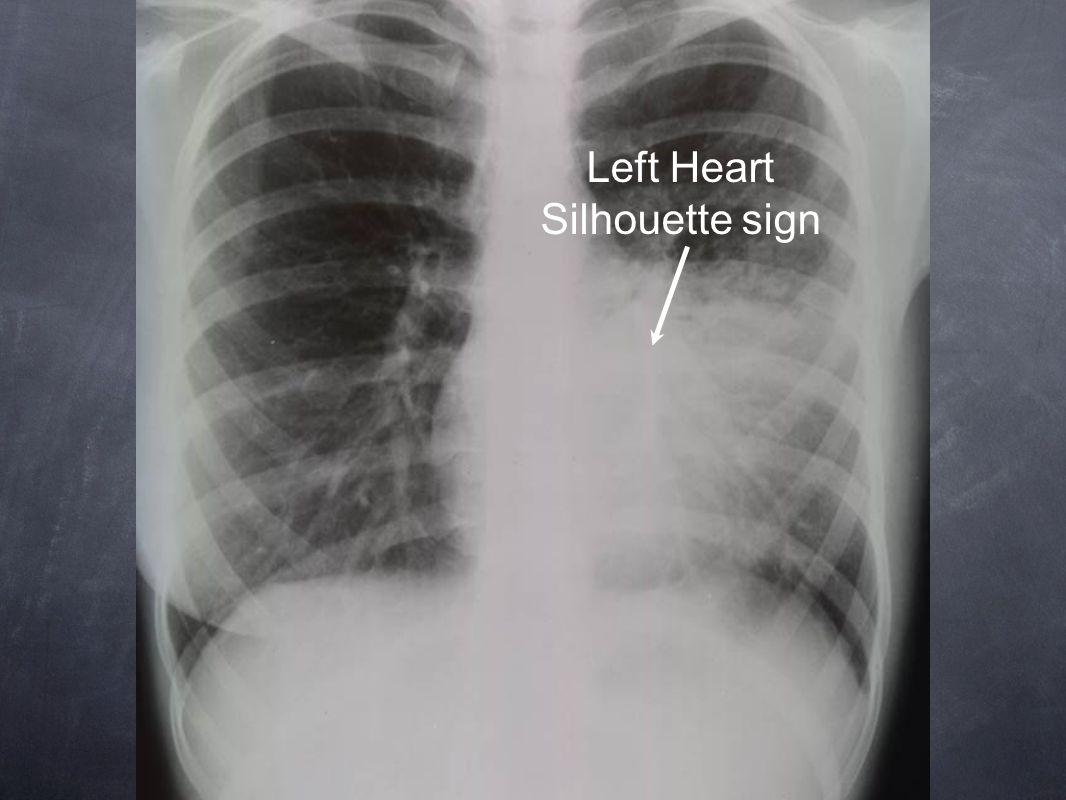 Left Heart Silhouette sign