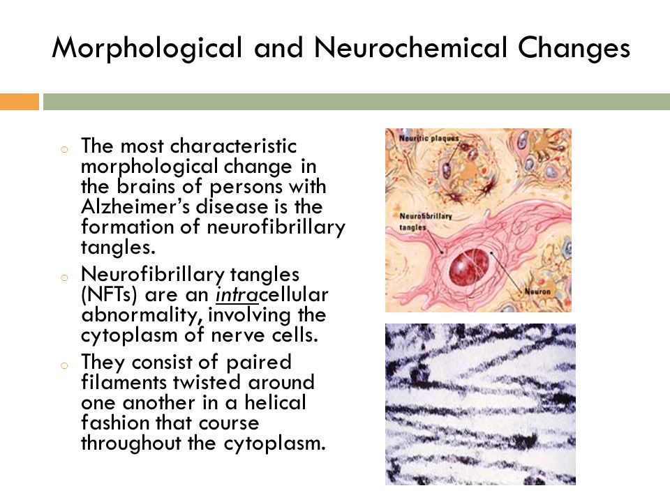 o The most characteristic morphological change in the brains of persons with Alzheimer's disease is the formation of neurofibrillary tangles. o Neurof